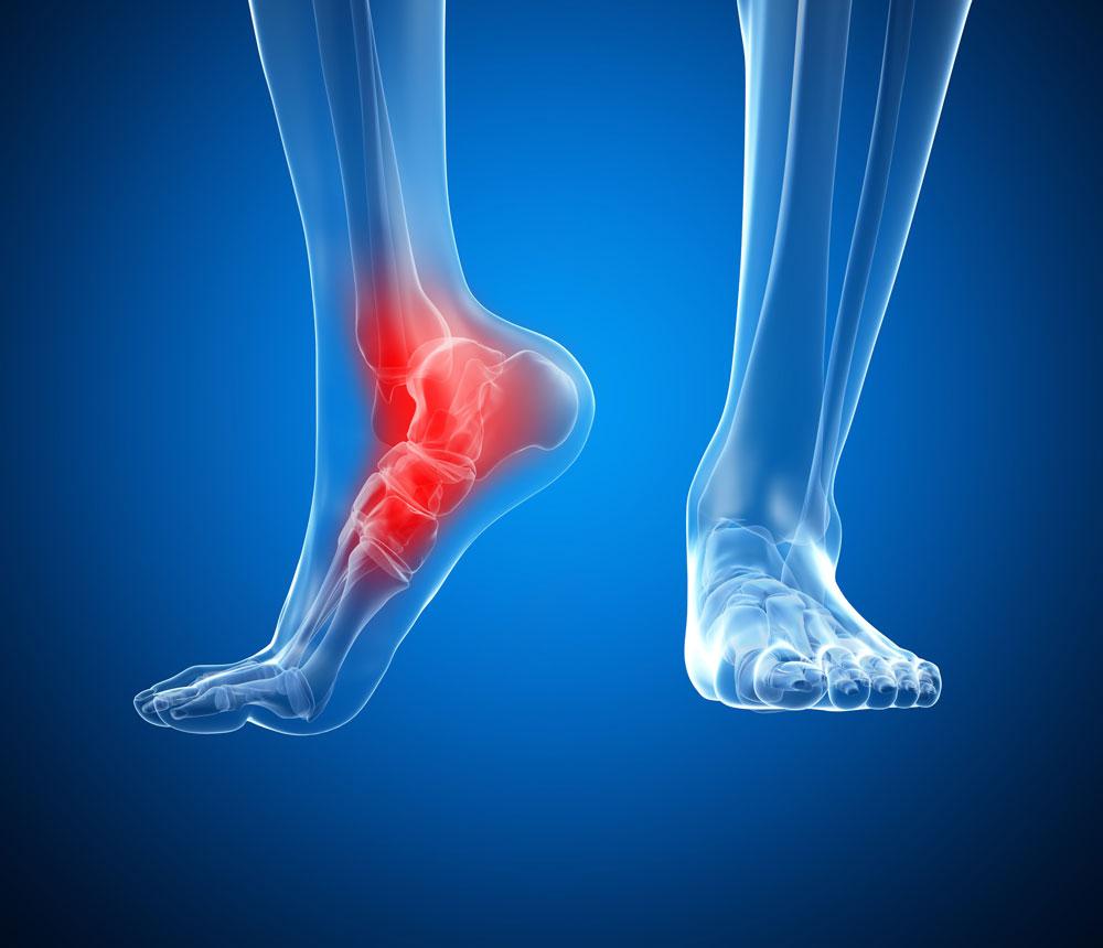 Artriidi artroosi kaes Liigeste kommentaare artroos