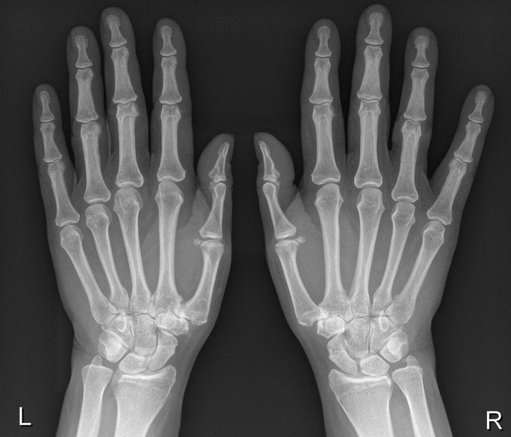 Distaalsed artriidi sormed Solvestab valu metafuusika