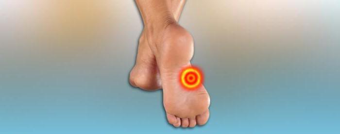 Valu vaikeste jala liigestega RA liigeste haigus