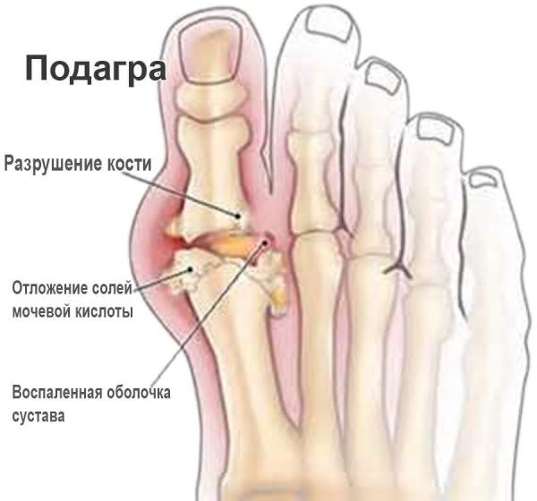 Lomiti haige luu liigesed Artriit Fingers ravib ravi