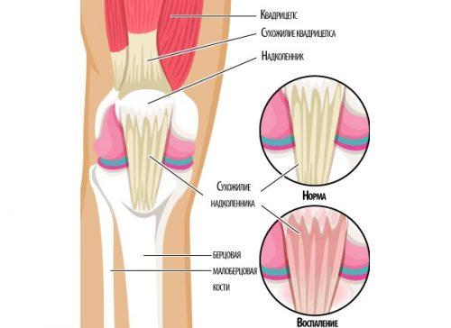 Argo vahend liigeseks Lugude ja liigeste vigastuste komplikatsioonid