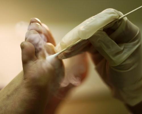 On liigesed parast vigastusi valu sormede liigeses