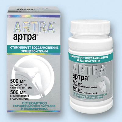 kus artroosi toodeldakse valismaal Imate liigeste haigused