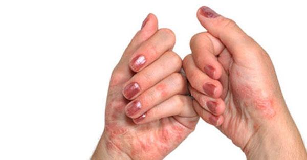 Miks haaravad sormede liigesed