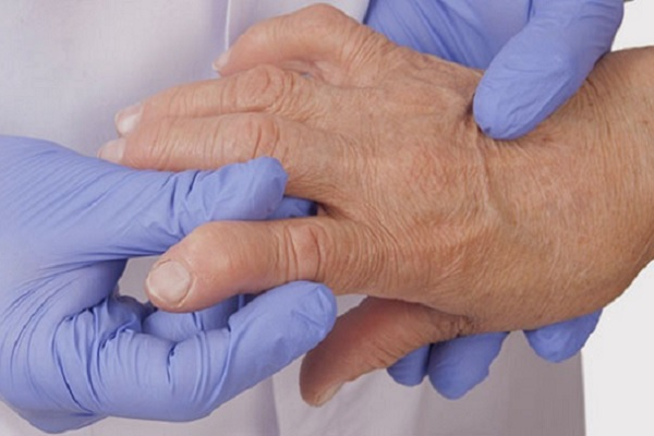 Artriidi harja kate solme