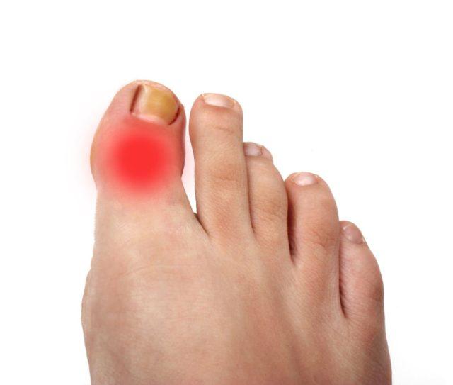 artriidi sormele Mis haigusi liigesed mojutavad