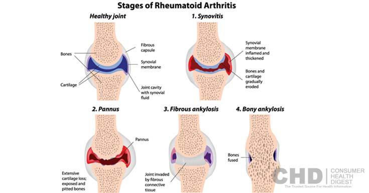 Artriit ja artrots sormede