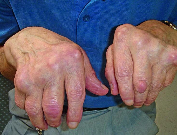 Artroos liigeses Valgu tottu valulikud liigesed