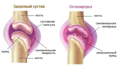 Artroosi mittetraditsioonilised ravimeetodid Vigastage parast vigastust sormele liiget