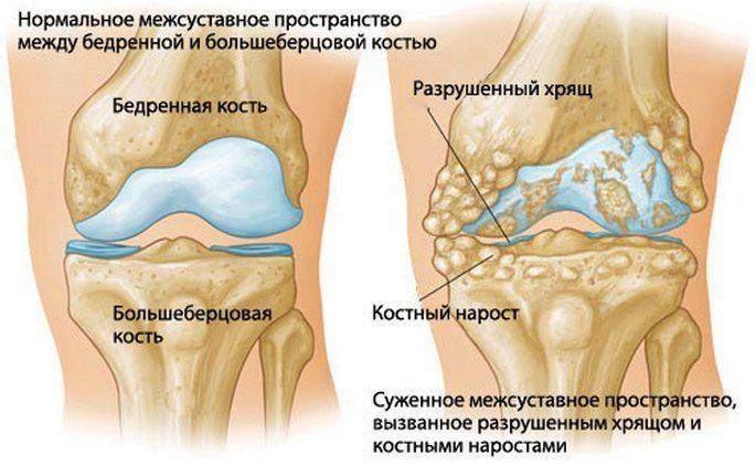 Artroosi ravi vanas eas
