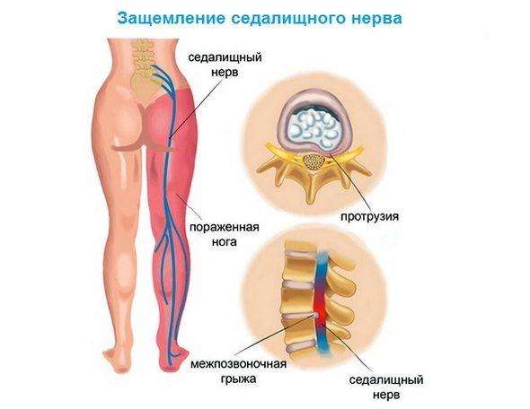 Artroosi ravis aitab mind Valu keskmise sorme harja liigesevalu