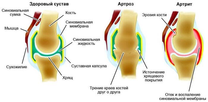 valu liigestes ja kontsades Kasivalu ja liigesed