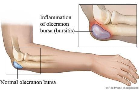 Kuunarnuki liigese salvi Bourskade ravi Mida saab ola liigese artroos