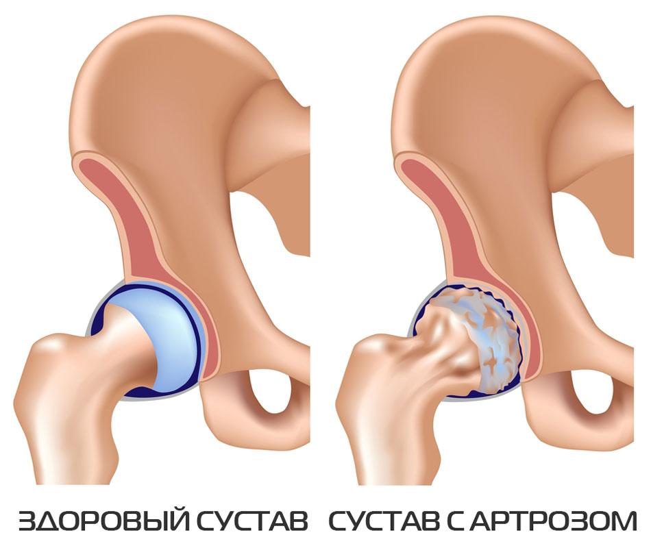 Artroosi 1-2 kraadi ravi Valu puusa emakakaela