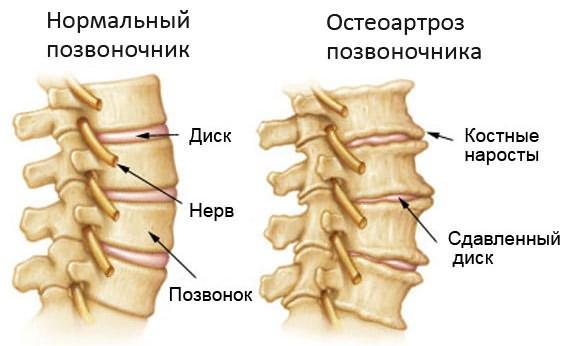Valu erinevates liigendites 2-3 paeva