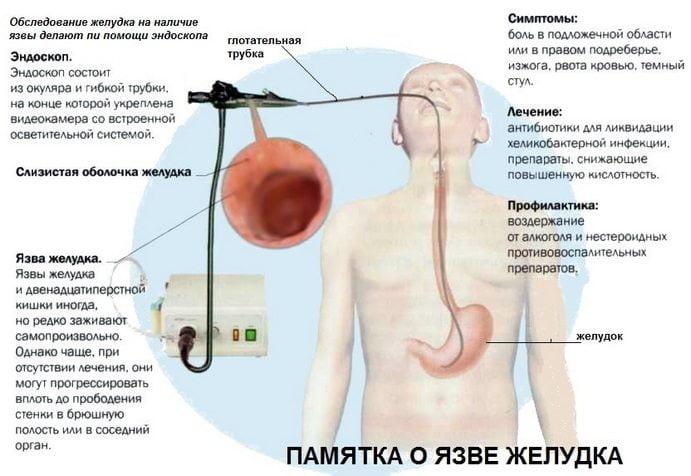 Kuidas ravida valu ja kriis olaliiges Gonartroos ola ravi ravi