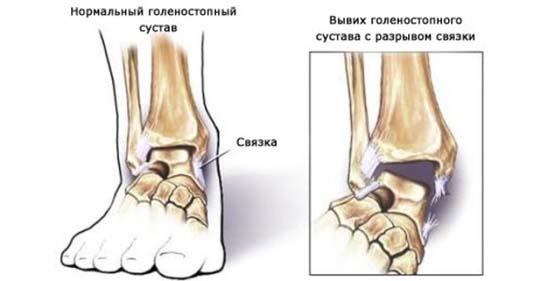 Kasi liigeste ravi parast murdumist Artroosi idaravi