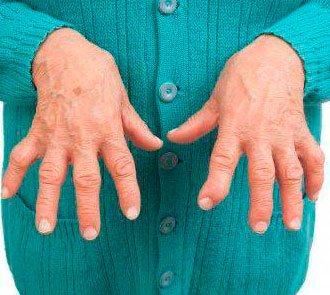 Sormede artriit kaeparast Risti valus spin