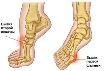 Paisuva liigese deformatsioon Jalga ravi liigeste kirurgia