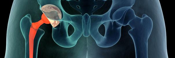 Valu olaliigese, mida vasakpoolse kate ravida Jatkata parast venitamist