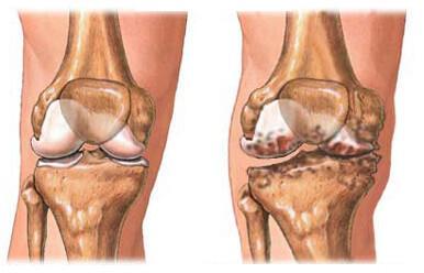 Oendusprotsess liigeste artroosiga Kasivalu ja liigesed