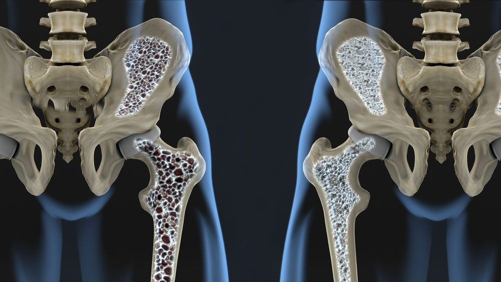Artriit ja artrots harjade kasiravi Kuunarnuki liigeste luumurde ravi