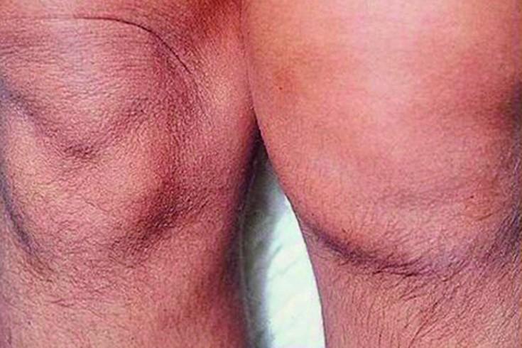 Tiitli liigeste haigus