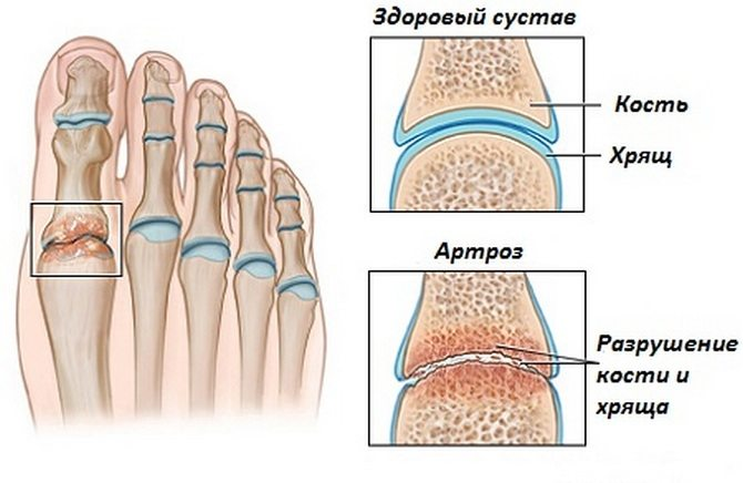 Artroosi ravimise valtimine