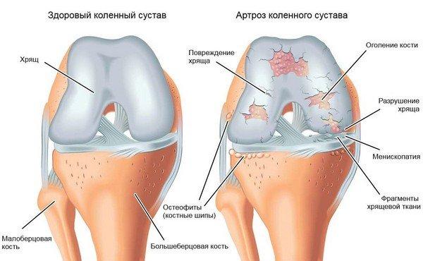 Kapid haavata raskusastmega raskusastmega raskusastmega Kuidas arendada kae artriidi
