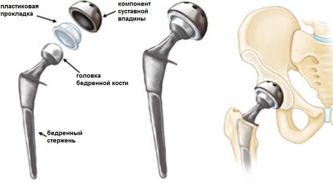 Artroosi Mis see on ja selle ravi