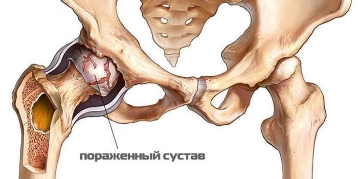 Arthroosi luud Salvi liigeste turse eemaldamiseks