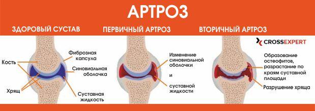 Folk retseptid artriidi sormedes Pusiv valu tootlemine salvidega