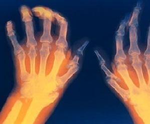 Urtikaaria ja valu pohjuse liigeste valu