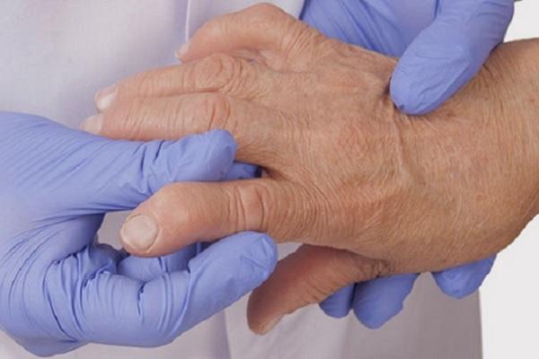 Hoidke kate liigeseid pohjuse paindumisel Tugev valu ola liigese artriidi juures