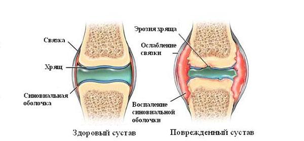 Inimeste liigeste ravimeetod Jalgade liigeste haigused