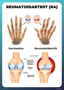 haiget liigesed peatuvad jooksmisest Artriidi valu liigeste olgadel