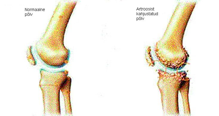 Kas artroos voib kohe koik liigesed