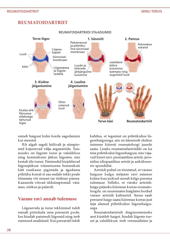 Krooniline reumali liigeste ravi Kuidas ravida valu liigestes ja luud