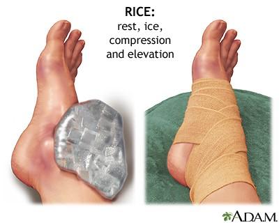 Kasi liigesed vigastused Foot liigeste turse pohjus