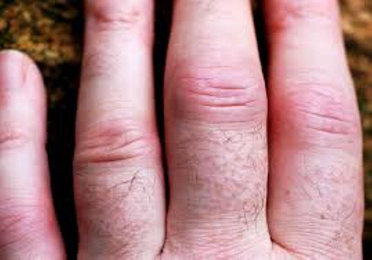 Kui liigesed haaravad sormedega Valutab sorme liigese, kui vajutate