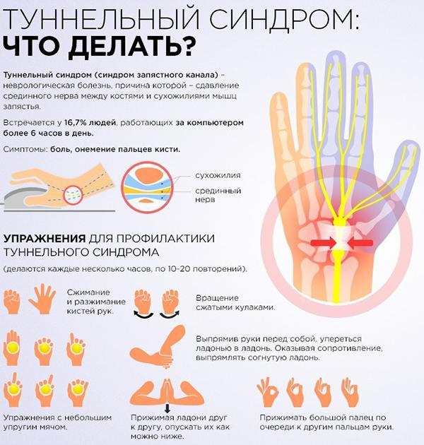 Kui liigesed valus sormede pohjus ja ravi Toetab pohjuse poletikku