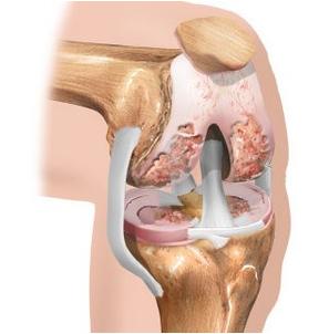 Neerude liigeste valu pohjus Vigastage parast vigastust sormele liiget