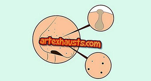 Molekuli liigeste ravi Artroosi luu tootlemine