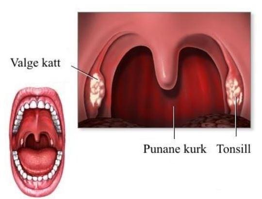 Ravi artroosi ola liigend