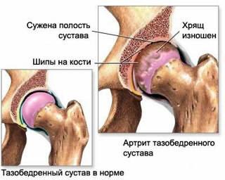 Meese jala liigeste haigused