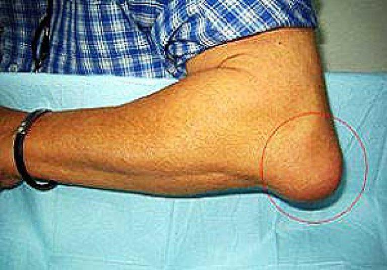 Kuldsete vuntsete retseptidega liigeste ravi