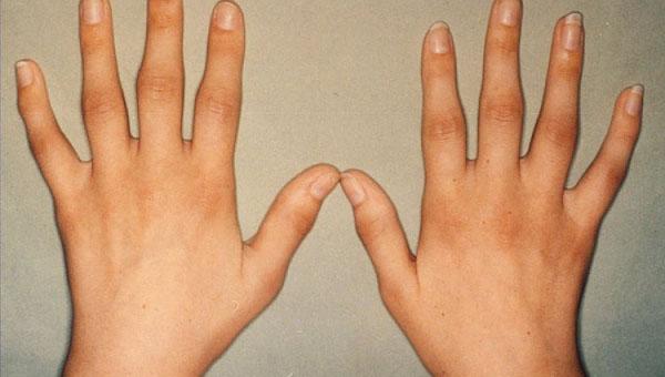 Kuunarnukite liigesed haiget pikendamisel