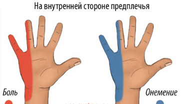 Kasi sormed haiget