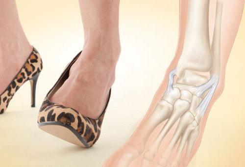 Liigeste artroos Ravi rahvameditsiin Sundroomi valu liigestes