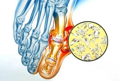 Liigeste haiguste uurimine Kasi valu sormed